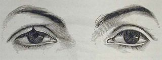 A Treatise on Operative Ophthalmic Surgery