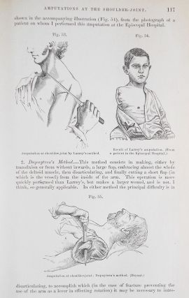 The Principles and Practice of Surgery by John Ashhurst, Jr.; Second Edition enlarged and thoroughly revised